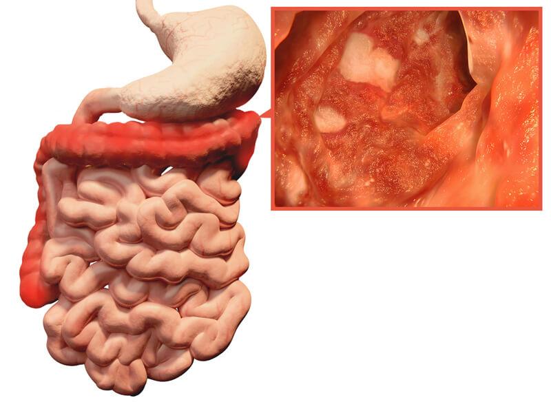 ulcerative-colitis-1.jpg.pagespeed.ce.Fe8uY9aFEk.jpg